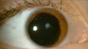 фото аниридии глаз