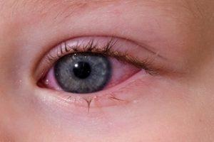 фото аллергического конъюнктивита у ребенка