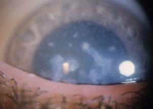 фото дистрофии роговицы глаза