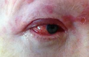 фото глаза больного герпетическим конъюнктивитом