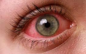 фото болезни ирит глаза