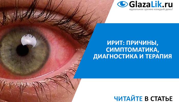лечение ирита (воспаление радужной оболочки глаз)