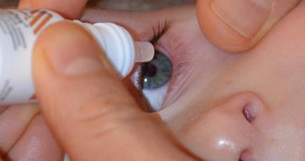 Аллергический конъюнктивит у ребенка: лечение и профилактика
