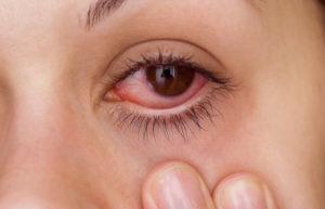 фото катарального конъюнктивита глаз