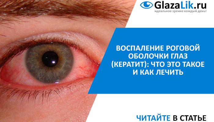 статья про кератит глаз