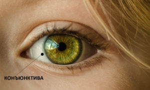 фото конъюнктивы глаза