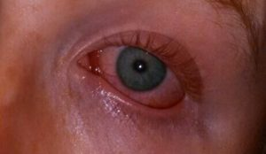 вирусный конъюнктивит женских глаз