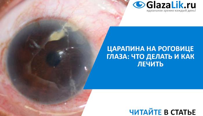 лечение царапин роговицы глаза