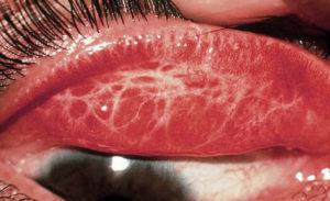фото трахомы глаза