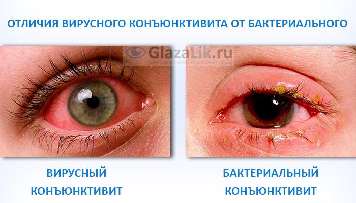отличия вирусного конъюнктивита от бактериального