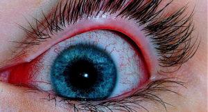фото вирусного конъюнктивита глаз