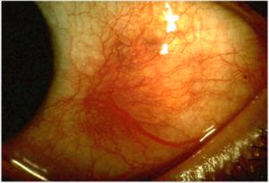 фото воспаления склеры глаз