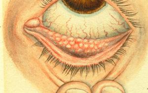 рисунок конъюнктивита фолликулярного
