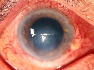 фото ожога роговицы глаза