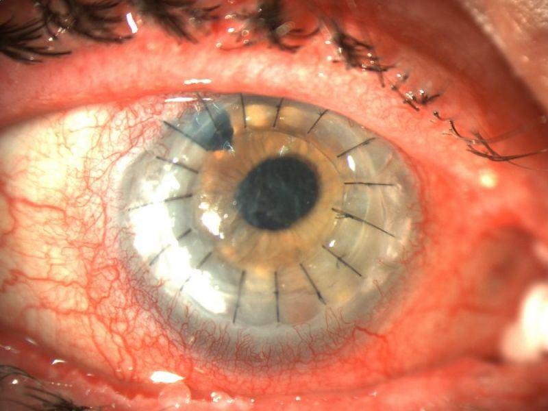 фото кератопластики глаза