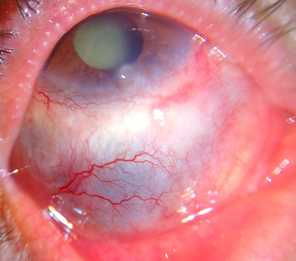 фото склерита (воспаления склеры глаз)