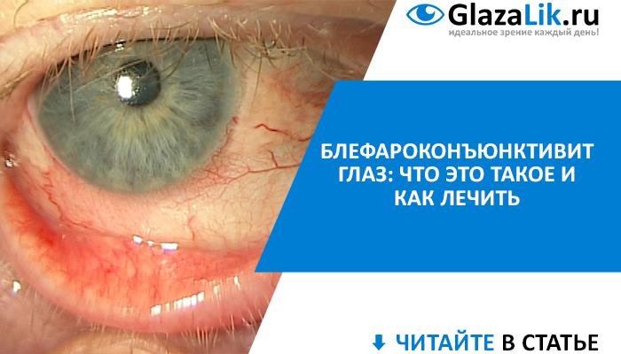 Блефароконъюнктивит глаз и его симптомы, лечение