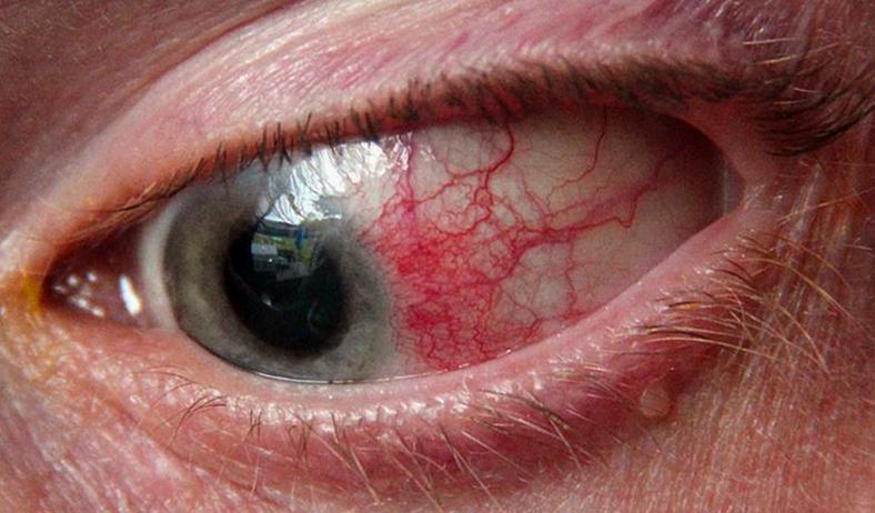 фото эписклерита глаза