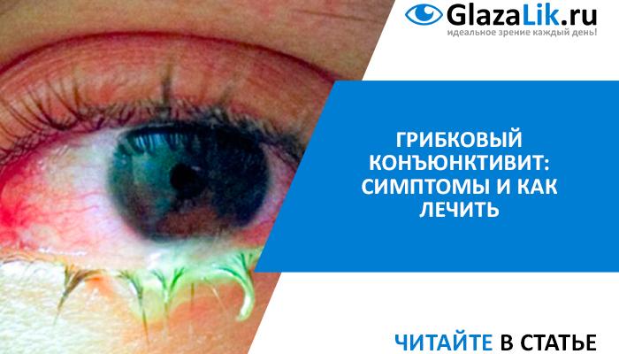 Грибковый конъюнктивит: лечение и симптомы болезни