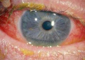 фото конъюнктивита грибкового