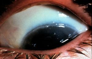 фото химического ожога роговицы глаза