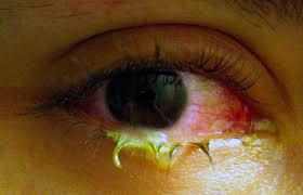 фото глаза с хроническим конъюнктивитом