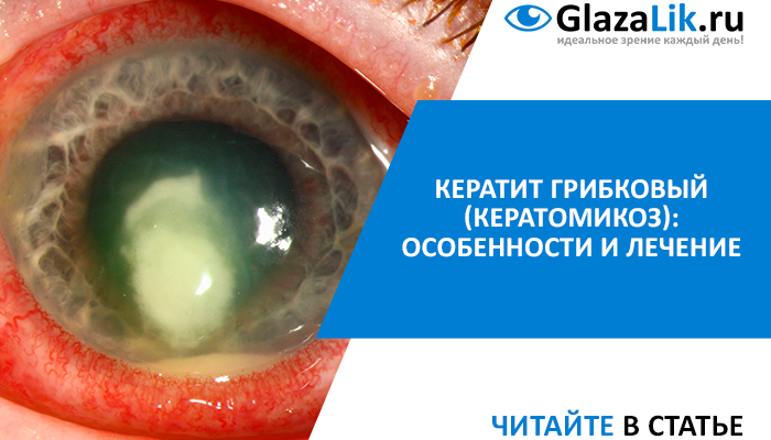 грибковый кератит glazalik