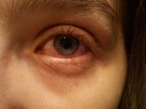 фото конъюнктивита глаз