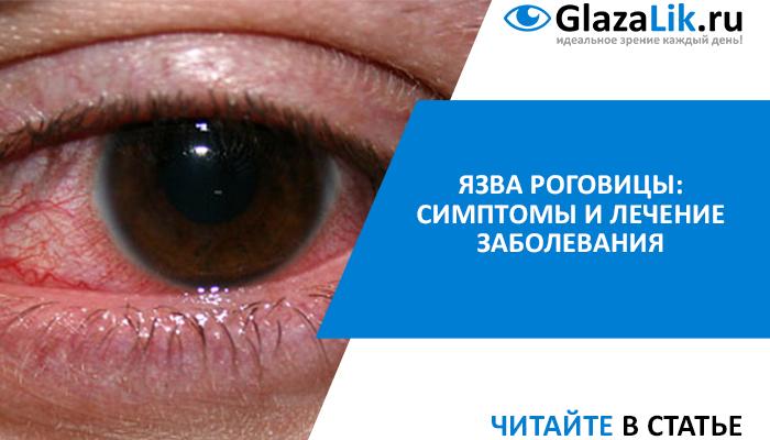 Краевой кератит глаз: причины и лечение