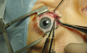 фото операции на глаза