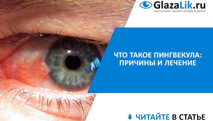 баннер для статьи о пингвекуле глаза