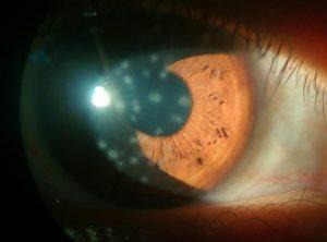 фото вирусного кератита глаза