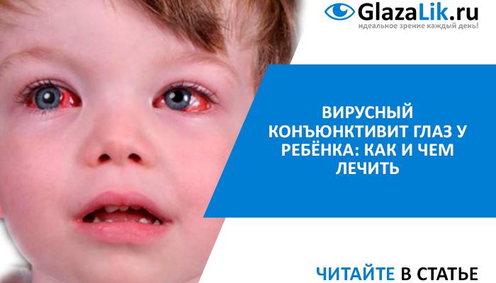 статья про вирусный конъюнктивит у детей