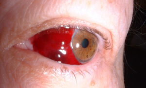 фото кровоизлияния в глаз