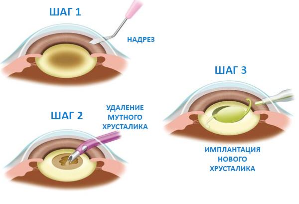 рисунок как проходит операция по лечению катаракты