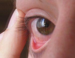 фото воспаления конъюнктивы глаза