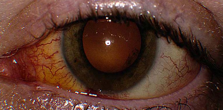 фото как выглядит хориоретинит глаз