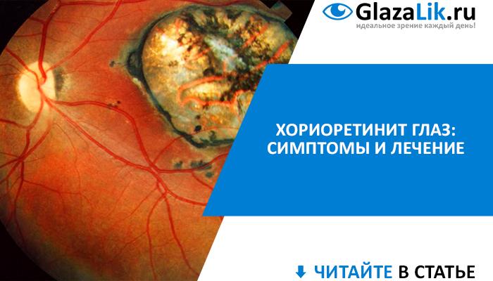 симптомы и лечение хориоретинита глаз