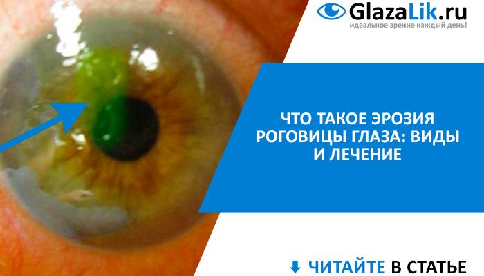 баннер для статьи об эрозии роговицы глаза