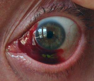 фото гемофтальма глаз