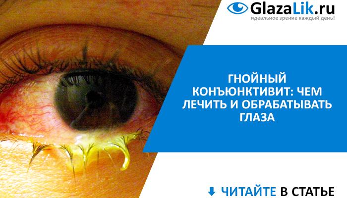 гнойный конъюнктивит глаз лечение