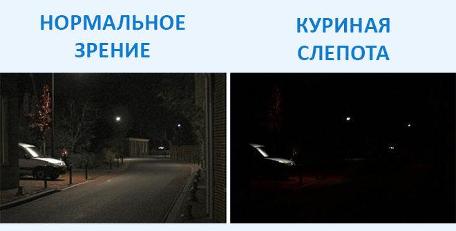 сравнение нормального зрения и куриной слепоты на фото
