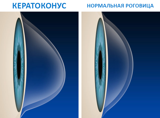 нормальная роговица и кератоконус