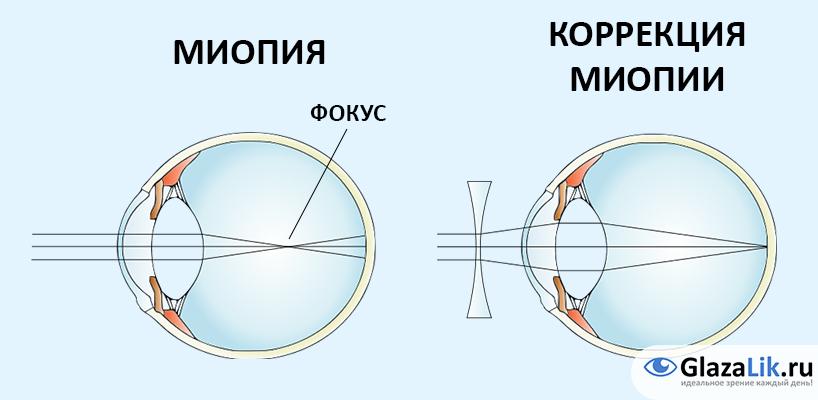 коррекция близорукости на рисунке