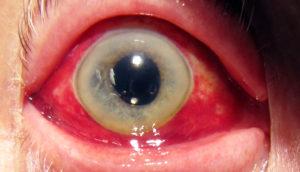 фото кровавого глаза