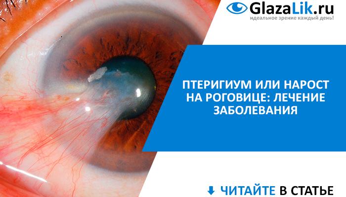 баннер для статьи о лечении птеригиума глаз