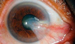 фото нароста на роговице глаза