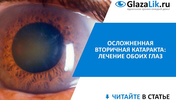 осложненная вторичная катаракта глаз, лечение