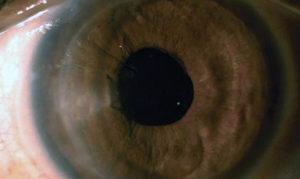 фото глаза с отеком роговицы