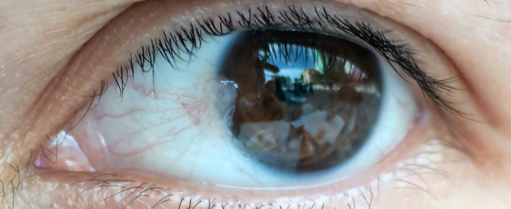 фото птеригиума глаза (нарост на роговице)